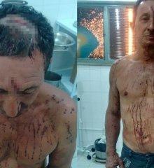Homem reage a assalto e fica ferido em Monsenhor Hipólito